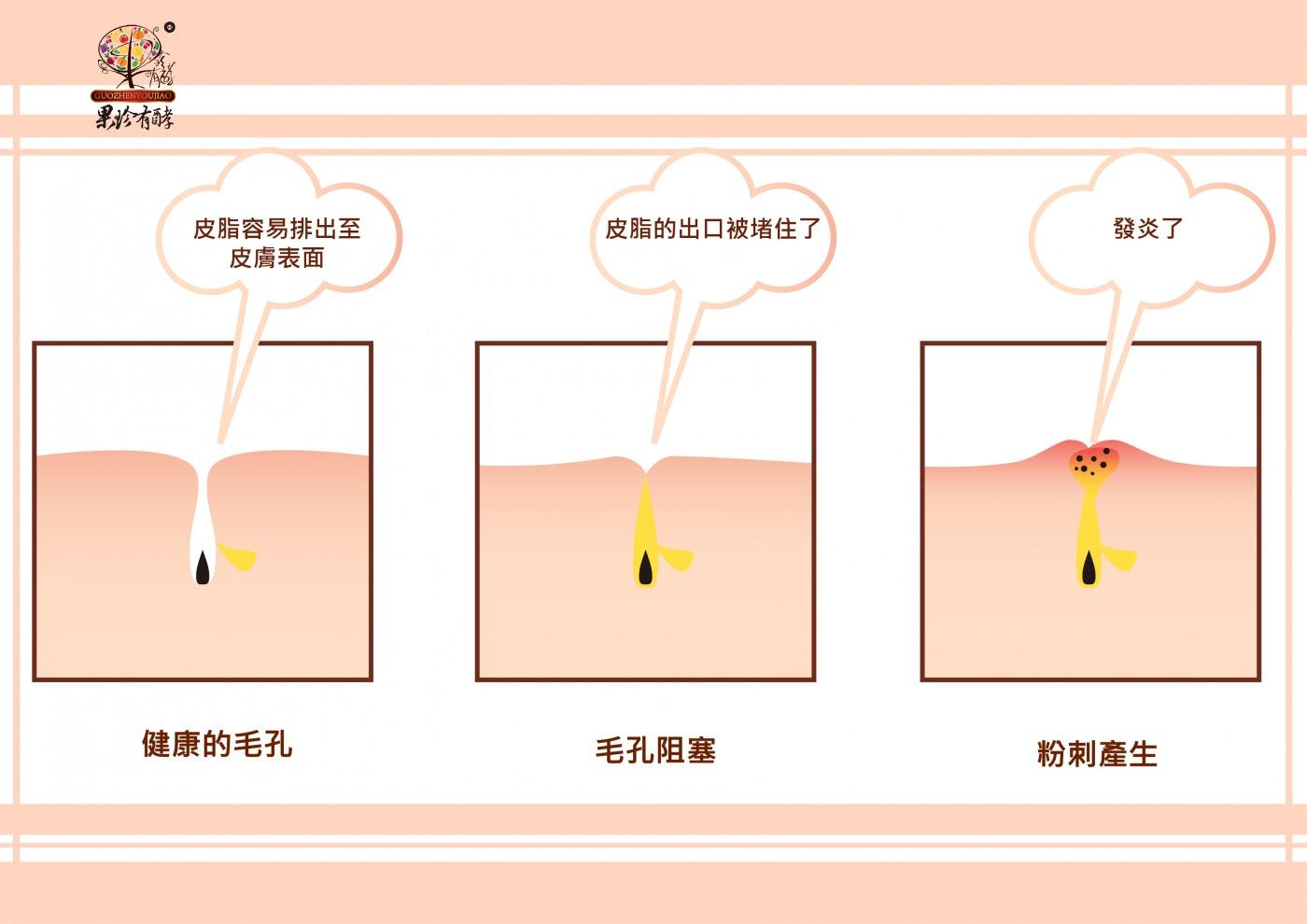 毛孔堵塞或皮膚角質層角化