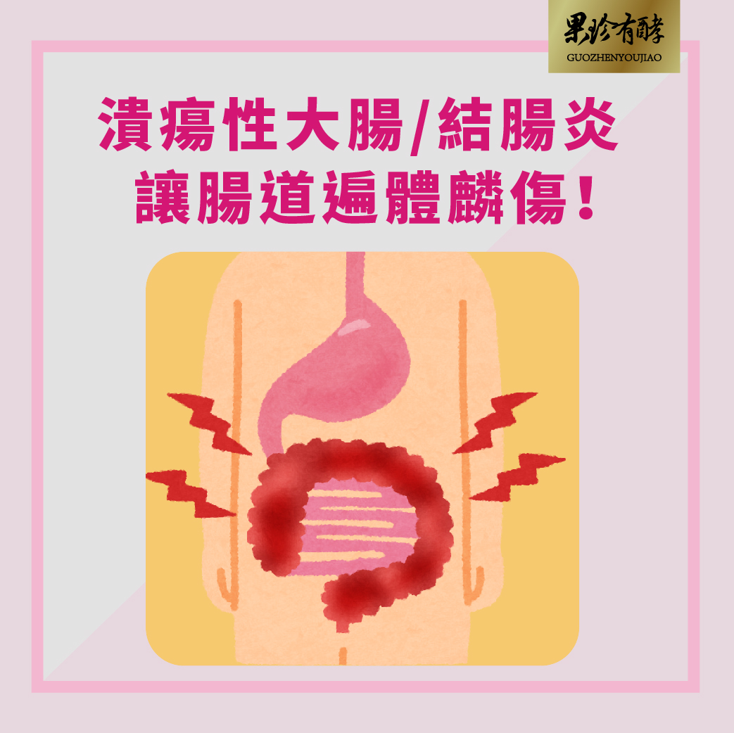 潰瘍性大腸/結腸炎