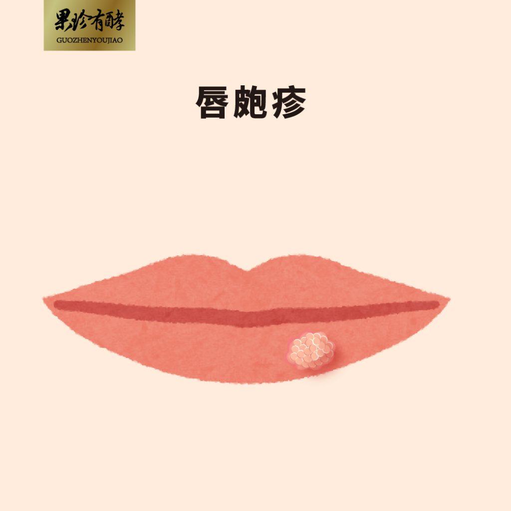 唇皰疹示意圖