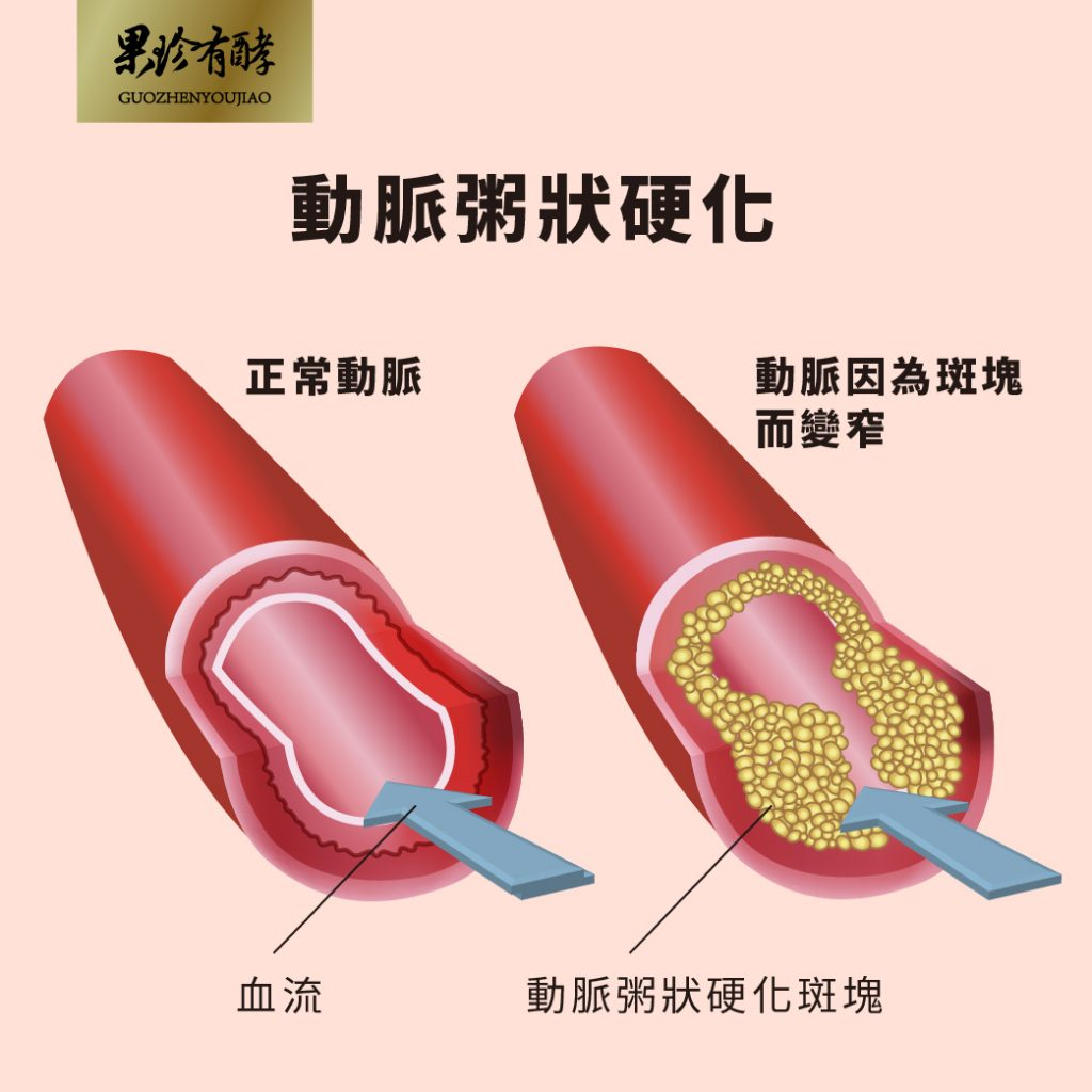 動脈粥狀硬化示意圖
