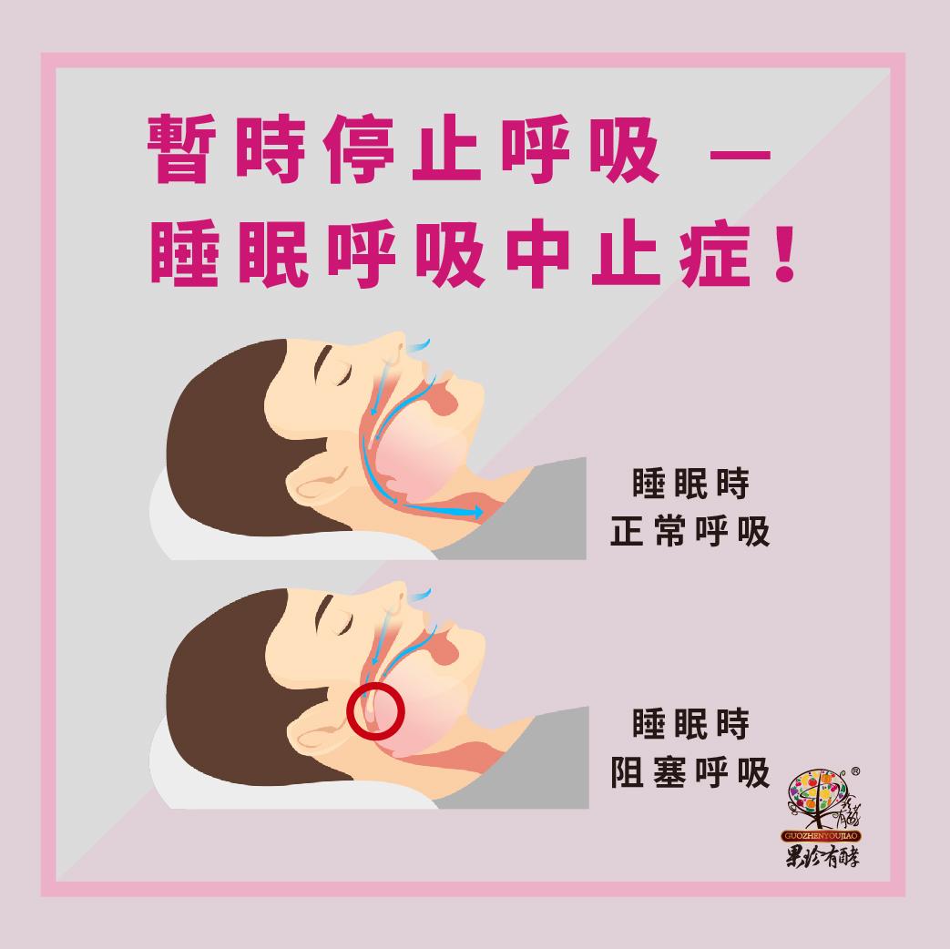 暫時停止呼吸-睡眠呼吸中止症