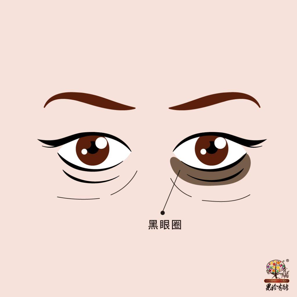 黑眼圈示意圖