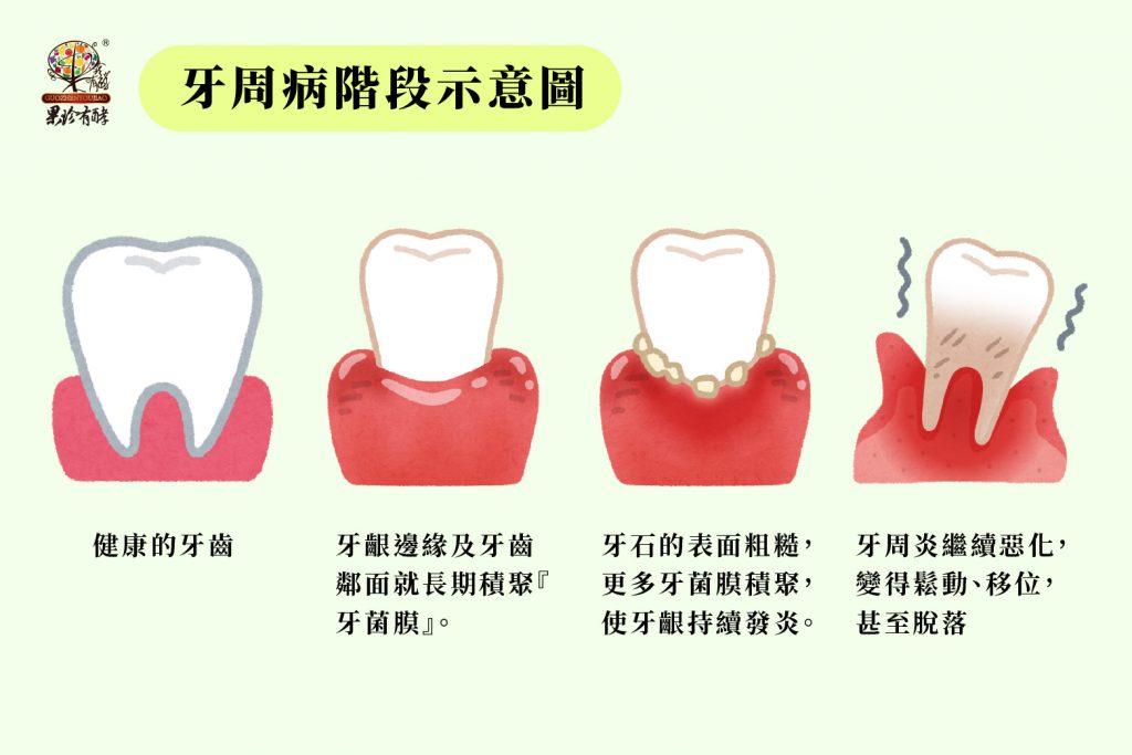 牙周病階段示意圖